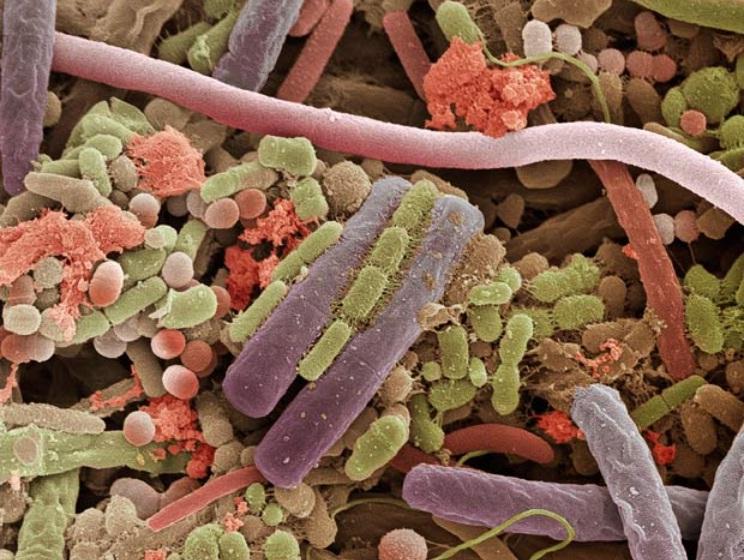 Bactéries sur la langue
