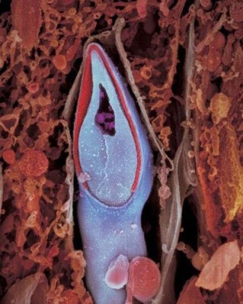 spermatozoide