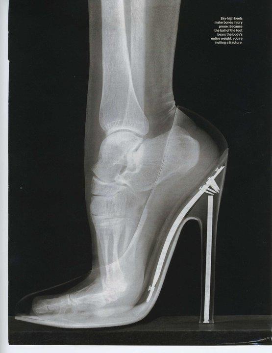 Un pied dans une chaussure à talon pied déformé