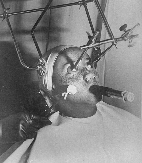 La pigmentation sur la peau de la raison et le traitement de la photo