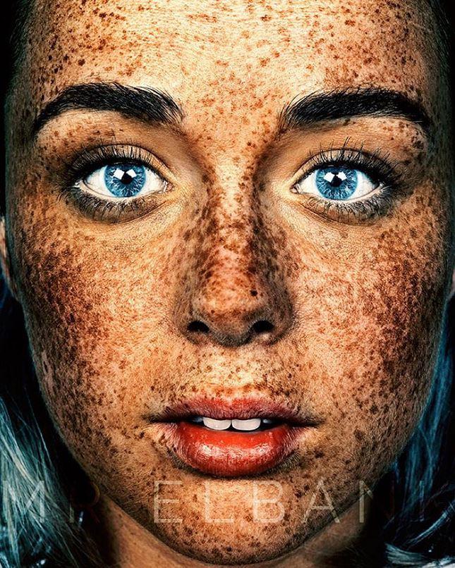 Que déduire la tache de pigment sur la joue