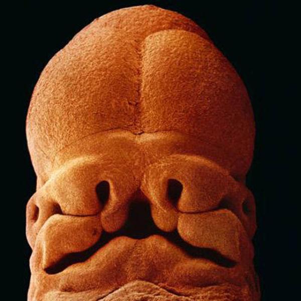 5 semaines. Environ 9 mm, Vous pouvez désormais distinguer le visage avec des trous pour les yeux les narines et la bouche.