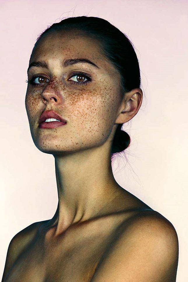 Taches-de-rousseur-visage-4